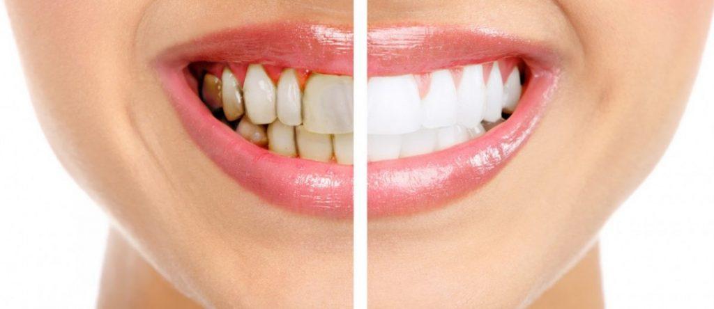 best teeth whitening pens reviews