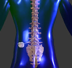 spinal cord stimulator implant reviews