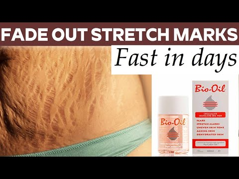 bio oil for stretch marks after pregnancy reviews